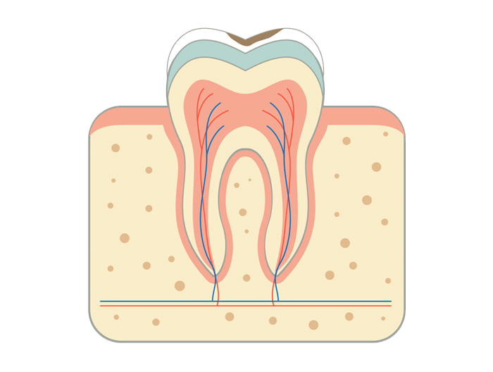 Causes of endodontic disease