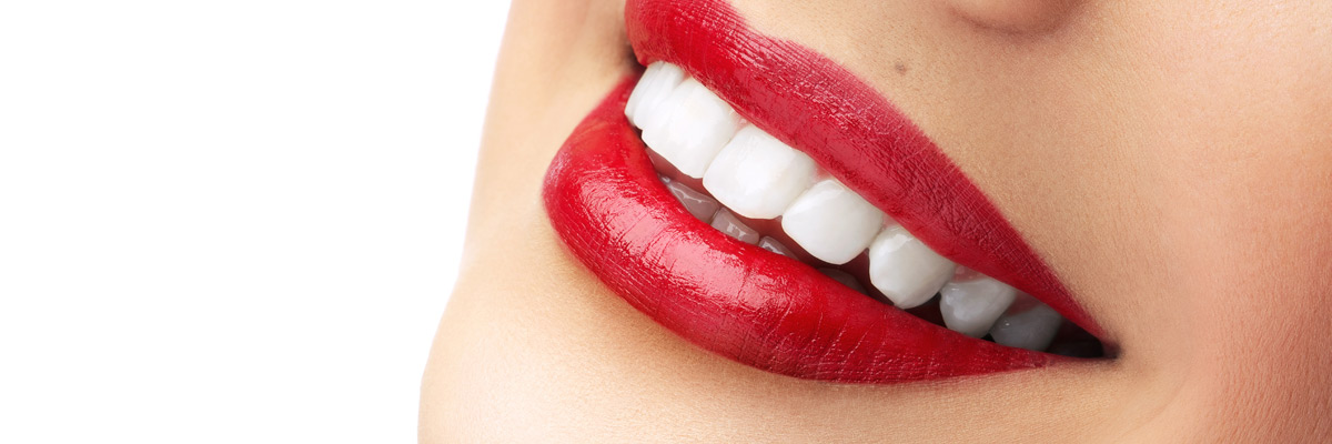 Teeth whitening Special offer South Croydon