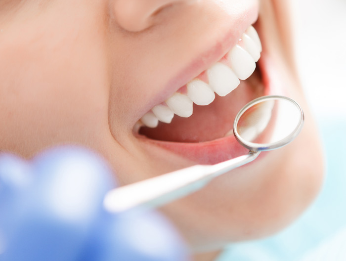Teeth whitening with mirror