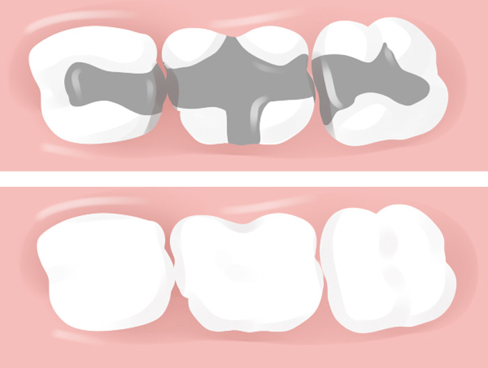 Inlays and onlays fillings before and after vector